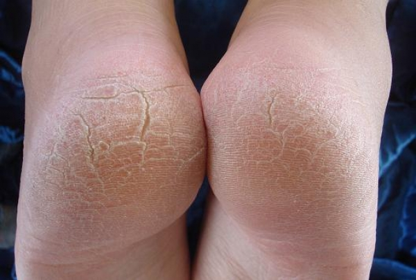 Почему кожа на пятках сухая и трескается